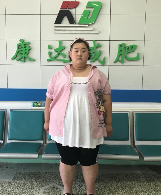 """337斤""""最美胖丫""""到长春康达医院减"""