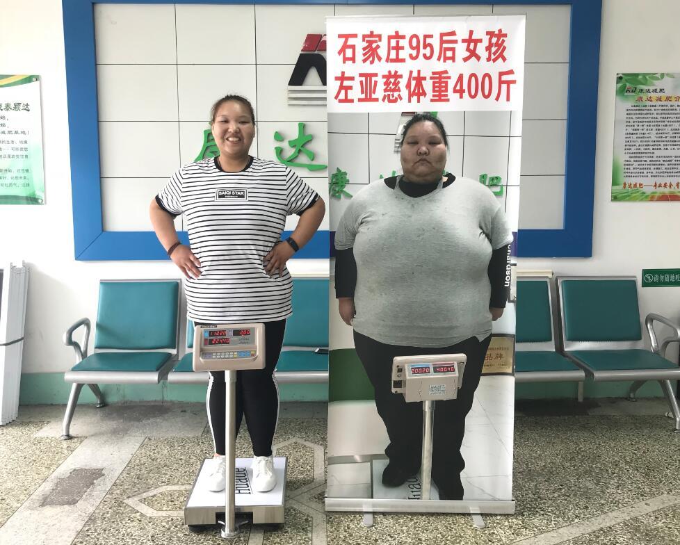 左亚慈在长春康达减肥八个月掉176斤