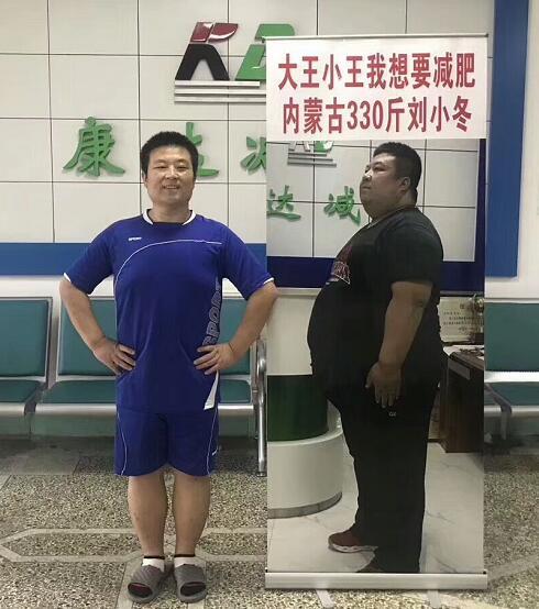 在长春康达医院减肥的《大王小王》刘