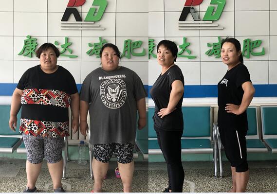 610斤母女在长春康达医院减肥一年暴