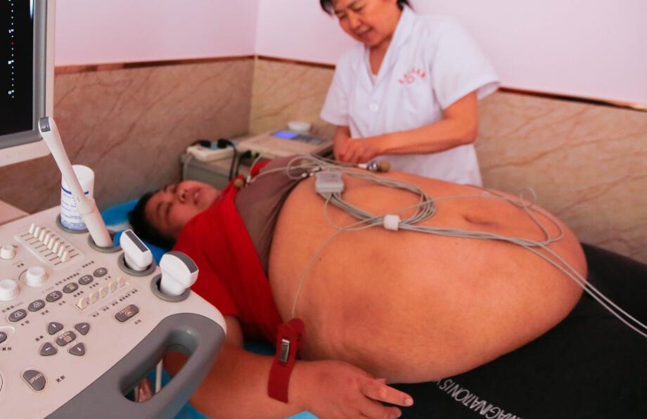 如何预防脂肪肝?