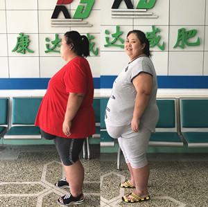 380斤胖妈为照顾儿子到康达减肥,首