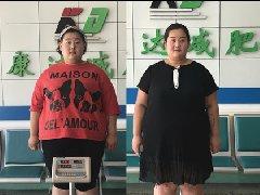 """337斤""""最美胖丫""""到长春康达医院减肥,首月减重34斤!"""