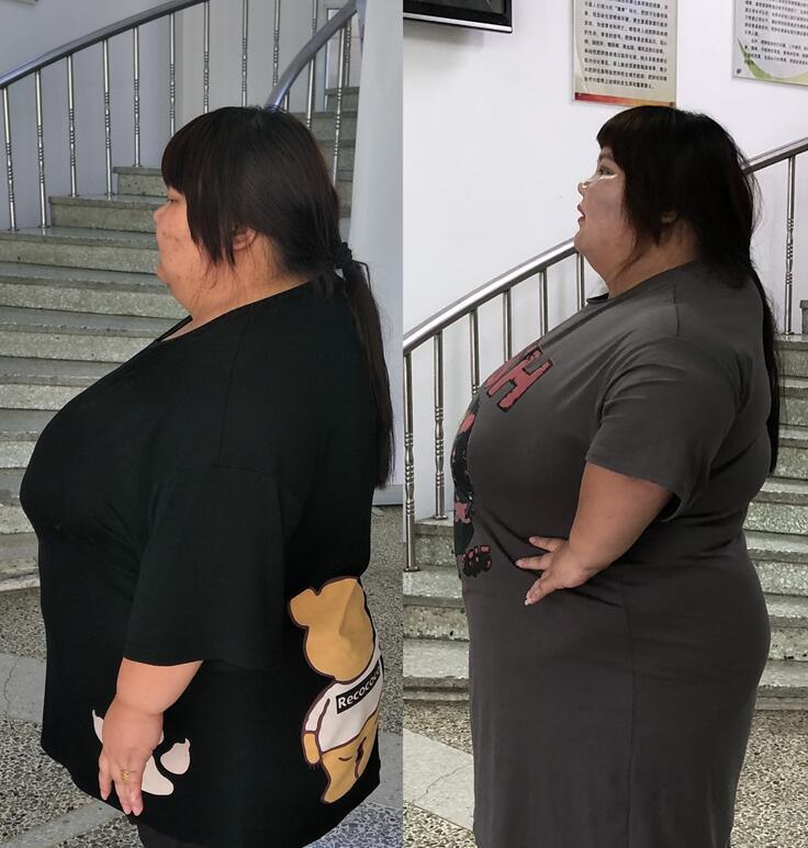 陈皖枝结婚三年被老公养到330斤,为生