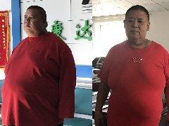 胖男为生健康娃到长春康达医院减肥,