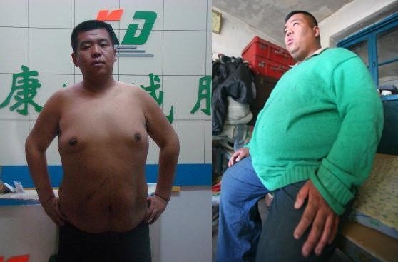 【康达减肥成功案例精选】长春小伙1