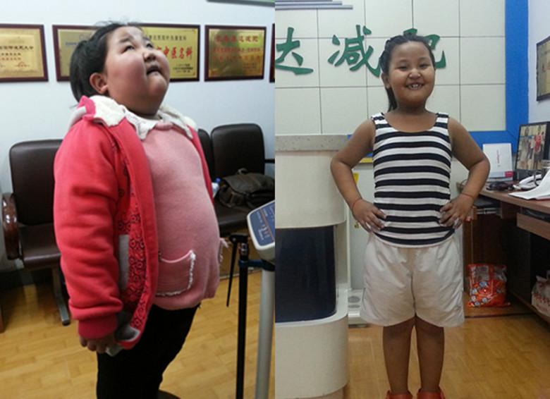 【康达减肥成功案例精选】5岁女孩114