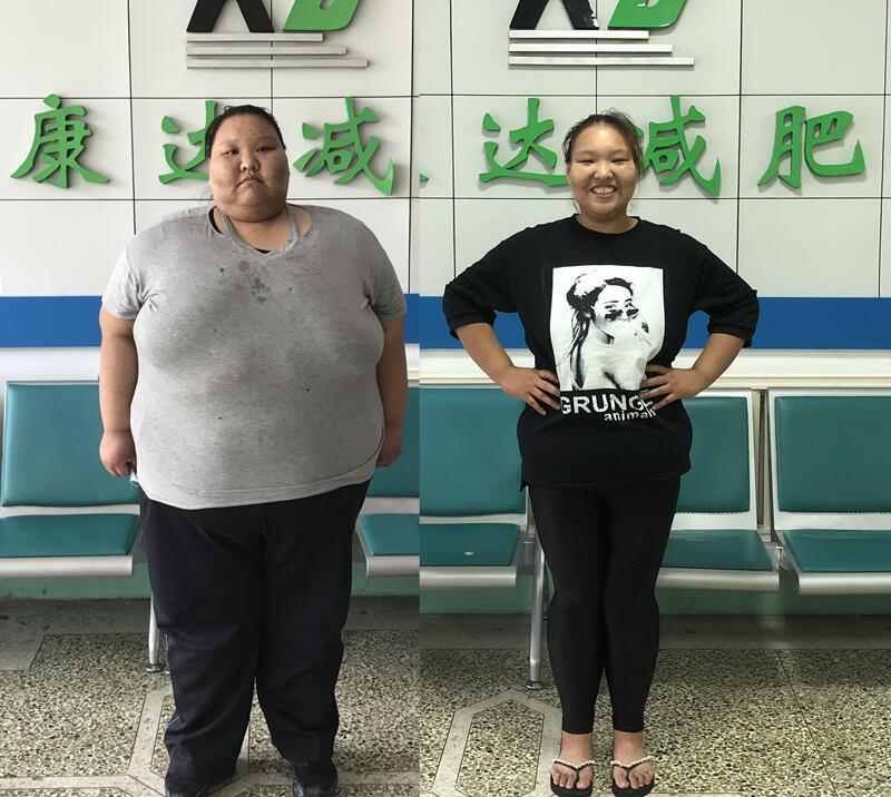 """在长春康达减掉半个自己,左亚慈的减肥效果堪比""""整容"""""""