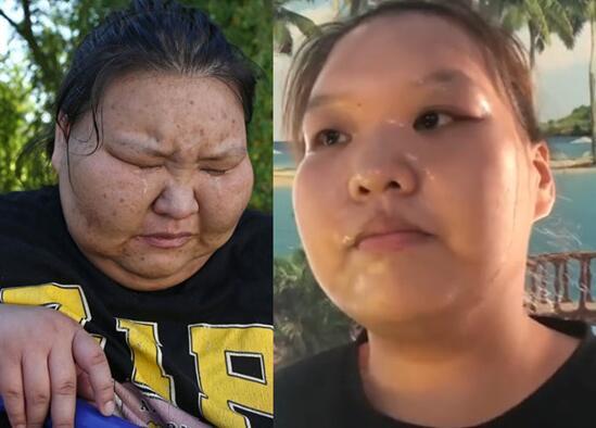 左亚慈在康达减肥一年瘦200斤 欲开服装店自己当模特