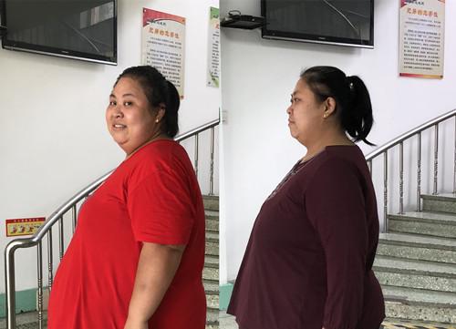体重380斤胖妈为照顾儿子到康达减肥,瘦了不少(组图)