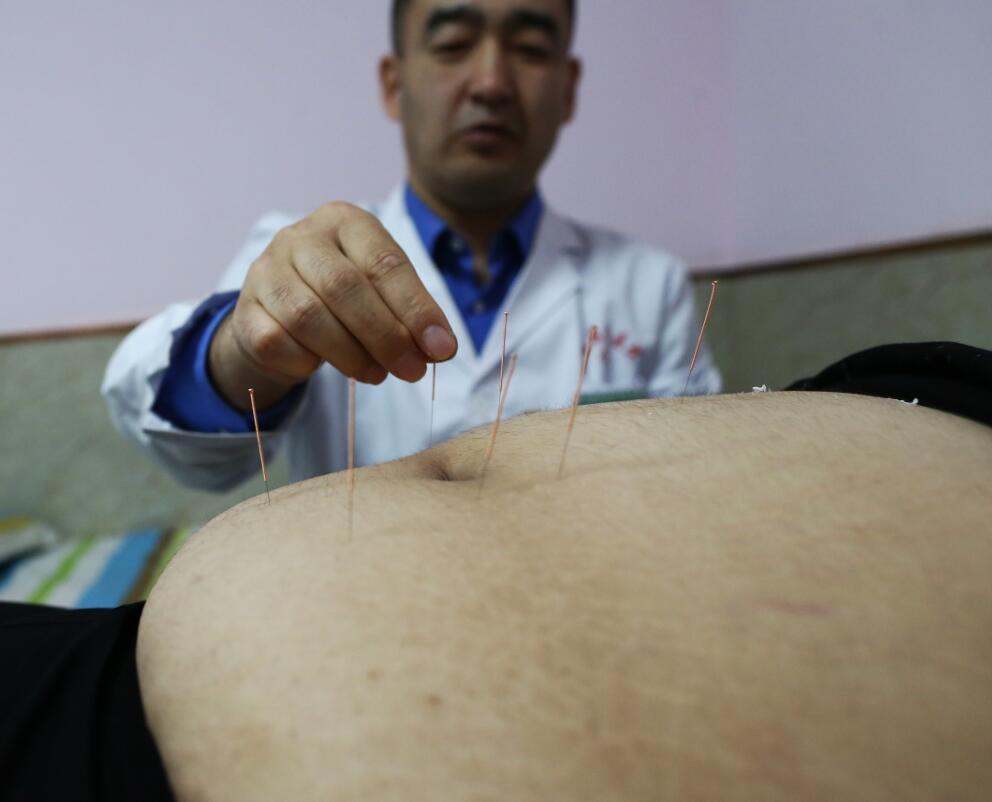 针灸减肥的误区有哪些?