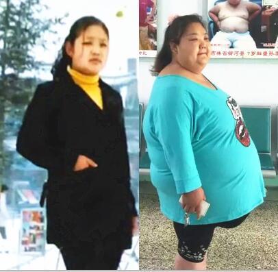 【康达减肥成功案例精选】十年,她的体重从140斤长到320斤!
