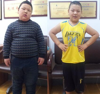 【康达减肥成功案例精选】八岁男孩重135斤,五个月减掉48斤