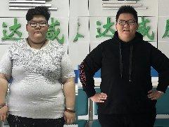 在长春康达医院减肥治疗两个月,才巾涵减掉50.4斤