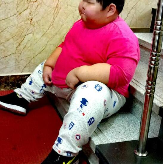 儿童肥胖危害多,胖孩子该怎样减肥?