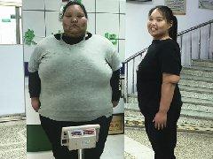 11个月暴瘦214斤,刚到康达减肥医院时她重达400斤