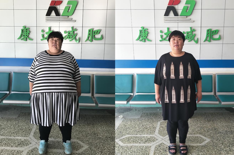 孙晓萍离开体校后体重增至360斤,丈