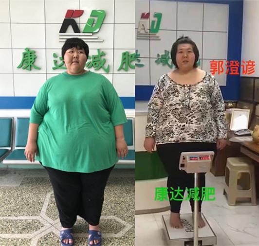 """400斤""""运动达人""""来长春康达减肥,平"""