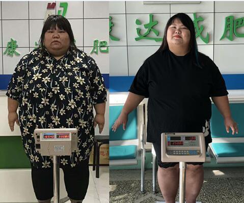 331斤的她为生宝宝到康达减肥,三个月