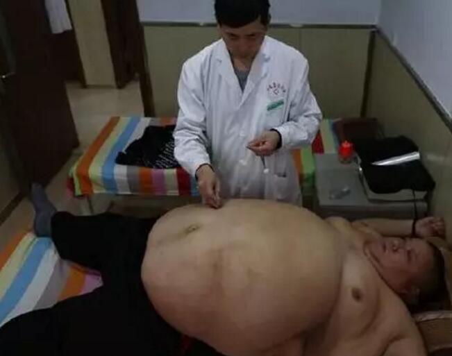 针灸减肥更讲因症施治