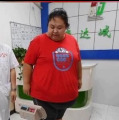 导致小肚腩的原因有哪些?