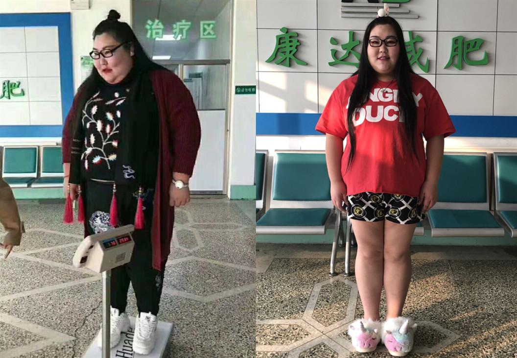特型女演员长春康达减肥 两个疗程瘦5