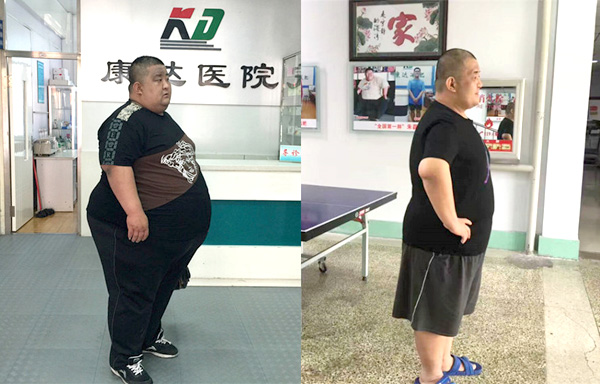 中华第一胖刘尚涛_成功减掉230斤【全