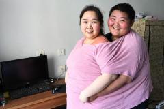 长春康达800斤小夫妻减重400斤【准备